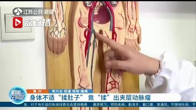 [肚子]女子身体不适揉肚子揉出夹层动脉瘤 危险!不慎将一根血管壁揉破