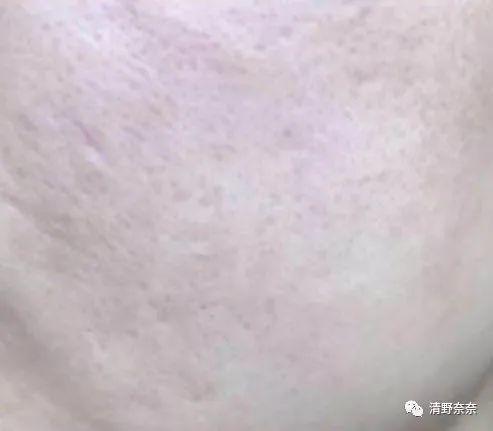 关晓彤演美妆博主,满脸爆痘去做针清,真的是很不专业的示范