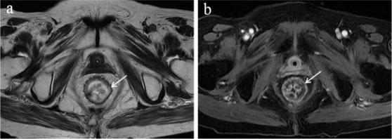 磁共振胃肠道特色技术三项