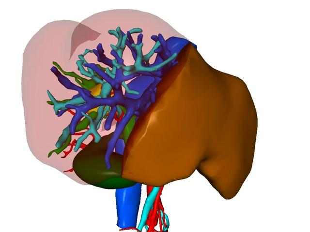 树兰(杭州)医院肝胆胰外科  成功完成一例腹腔镜右半肝切除术