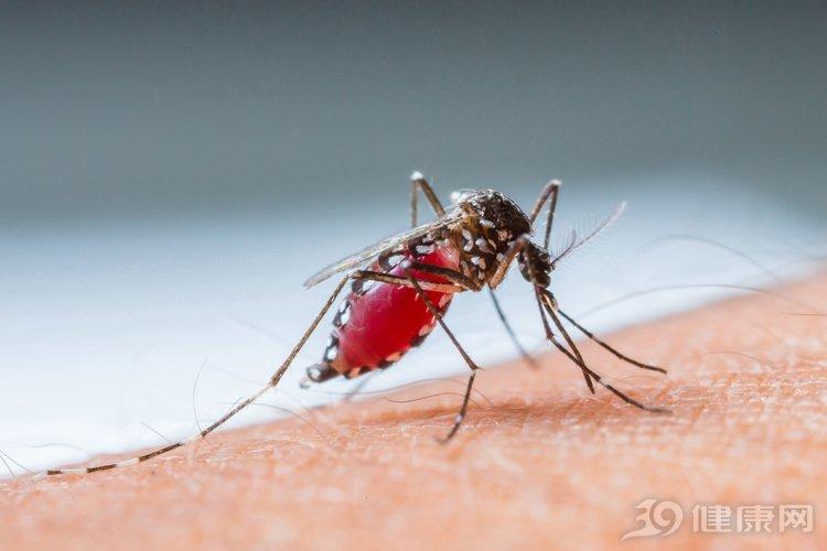 被蚊子叮了如何快速止痒?医生说用它效果更好!