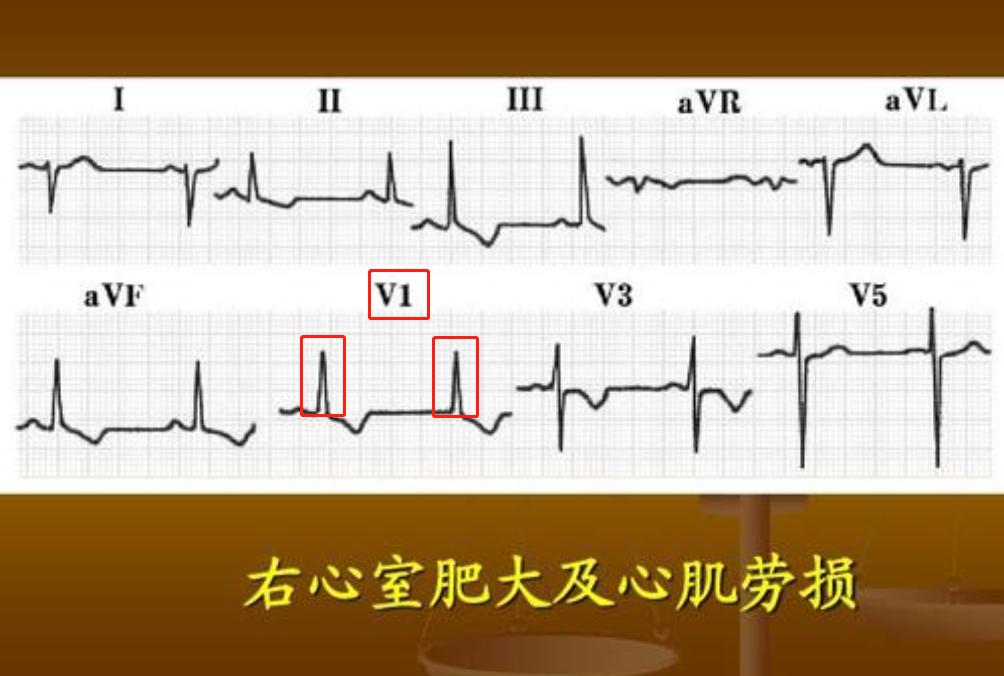 普通人怎么看心电图?医生说:把图上的线条和心脏的跳动结合起来