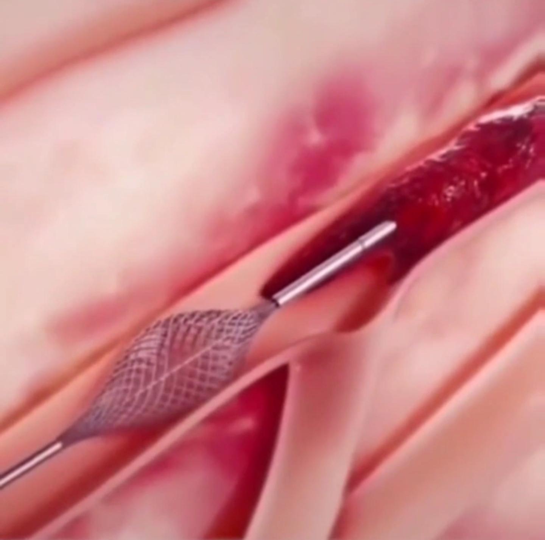 最新血栓疏通技术!以后不用心脏支架了!为什么医生不用?速看