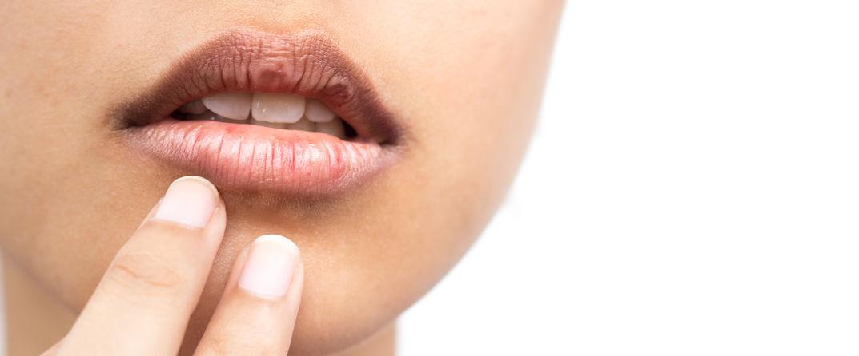 冬季天气干燥,嘴唇出现脱皮,5个小方法帮你大忙