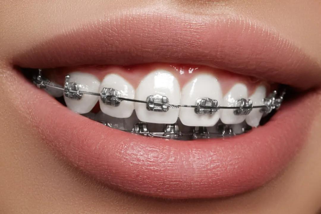 """带牙套=变美?牙齿矫正挺""""挑人""""!"""