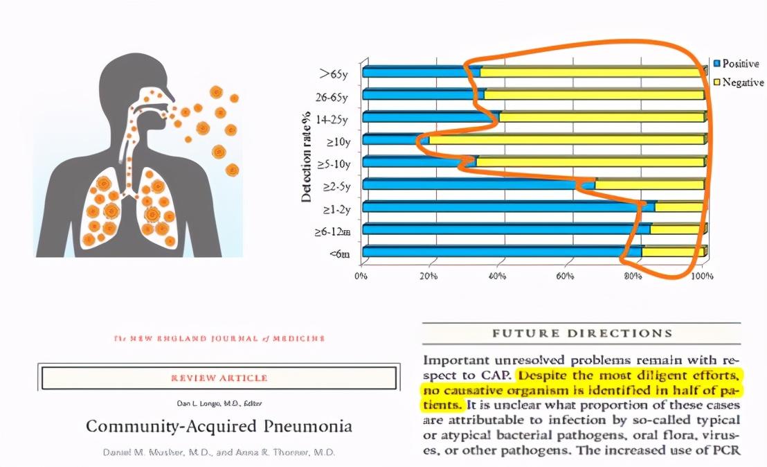 呼吸系感染性疾病的精准诊断丨CACP 2021