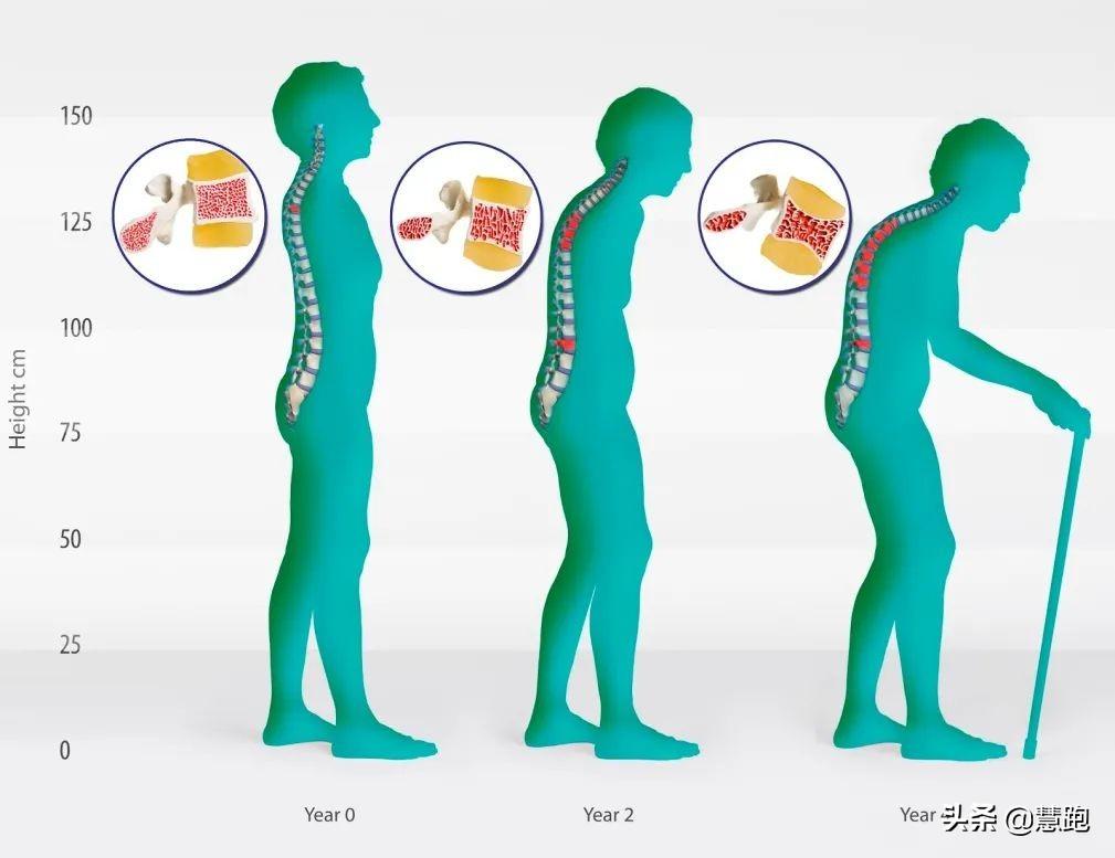 2020中国居民营养与慢性病最新报告:运动能防治这几种疾病? 疾病防治 第23张